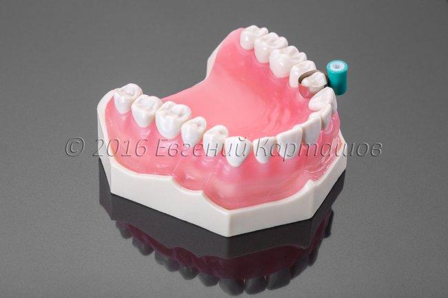 Съемка для Института Стоматологии